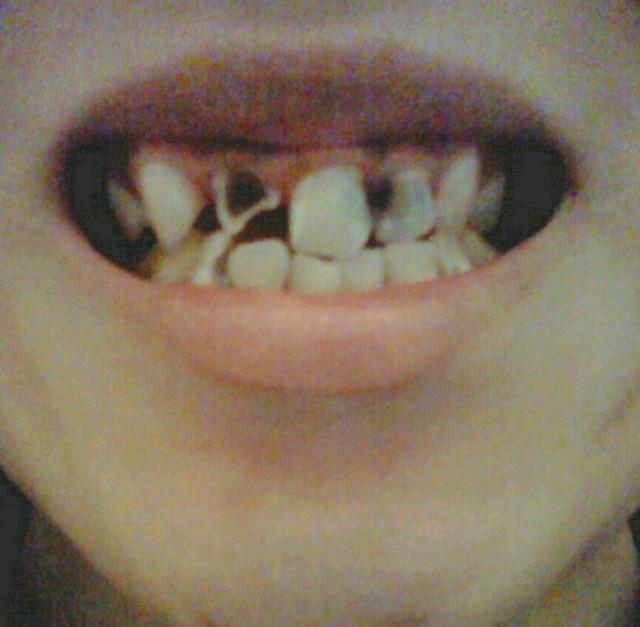 やばい 虫歯 放置 画像