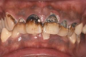 前歯がボロボロになってきた